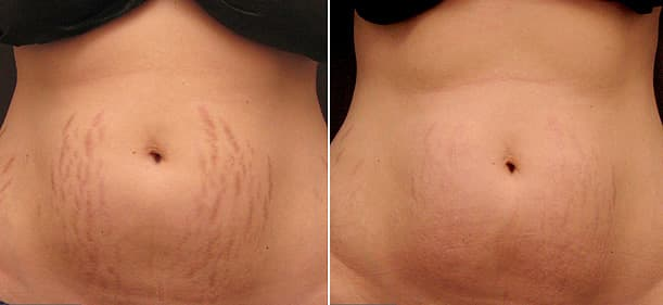 laser stretch mark removal on belly